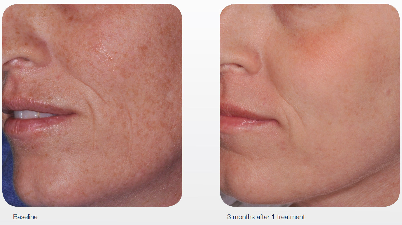 Lincoln Aesthetics Acupulse Skin Resurfacing