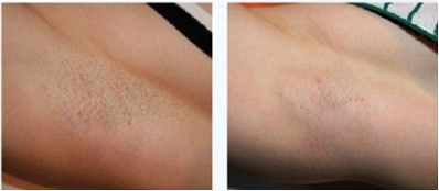 Lincoln Aesthetics Laser Hair Removal