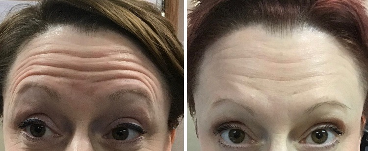 Cosmetic Botox Therapy
