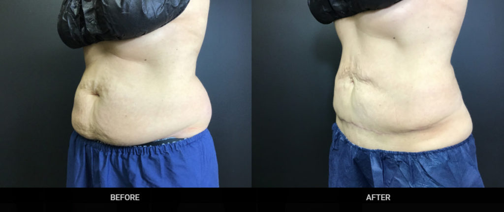 Real patient experience with Advanced Skin + Body Aesthetics